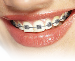 Damon® Braces