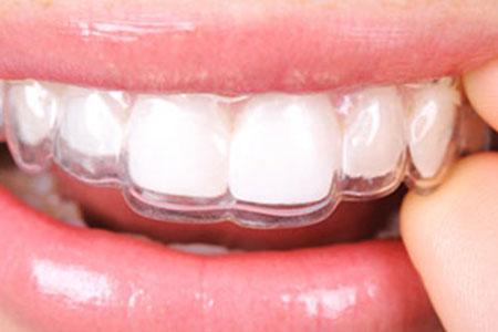Retention | Brown Orthodontics | Kinston NC